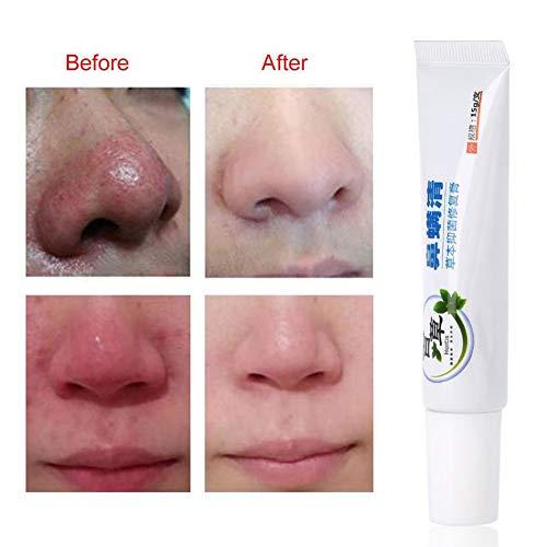 Rosacea Creme - Rosacea Treatment Skin Care Poren Produkte für Gesicht Rötung Relief,...