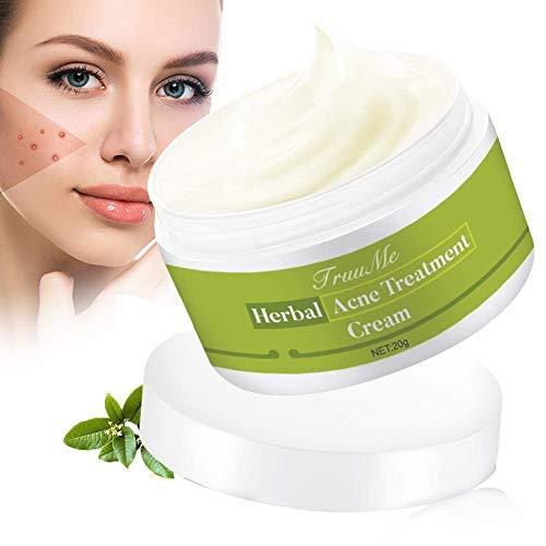 Akne Creme, Anti Pickel Creme, Anti Akne Creme, Pickel Anti Akne Creme regeneriert die Haut,Balance...