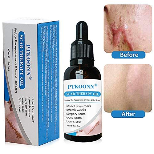 Narben oil,Narben Behandlung,Narben Serum,Scar oil,Reduzieren alten und neuen Narben und Reparieren...
