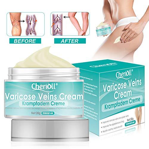 Krampfadern Creme, Varicose Veins, For Phlebitis Angiitis Entzündung Blutgefäß Venen Vaskulitis...