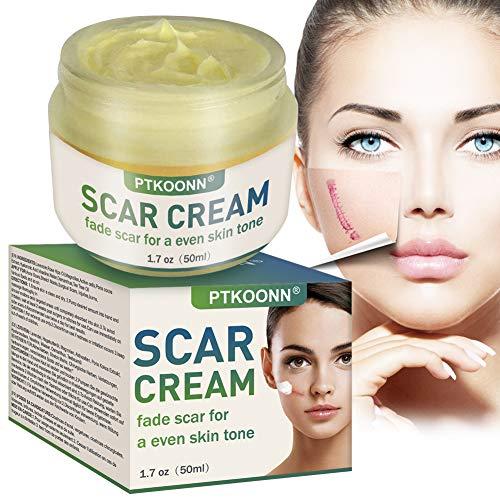 Narbencreme,Narbensalbe,Narbenentfernung,Scar Fade Cream,Behandeln Sie neue und alte Narben -...