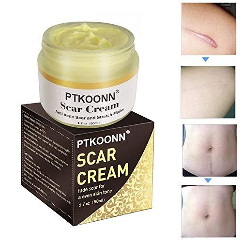 Narbencreme,Narbensalbe,Narbe gel,Narbenentfernung,Scar cream,Narbe Creme Narbe Behandlung,Scar Fade...
