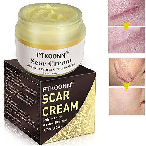 Narbencreme, Scar Cream, Narbensalbe, Narbenentfernung, Akne Narbe entfernen creme, Scar Fade...