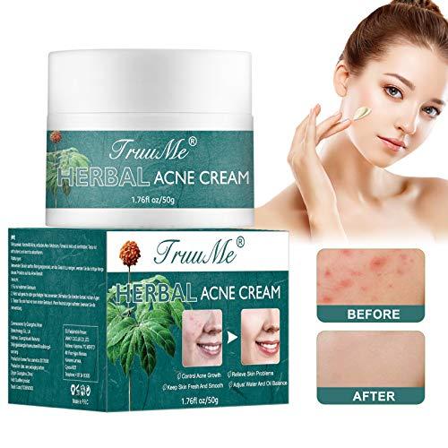 Akne Creme, Acne Treatment Cream, Akne Entferner Creme, Hilft Gesicht Akne zu Entfernen,...