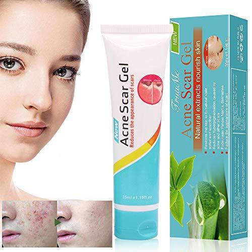 Akne Creme, Akne Narbencreme, Anti Pickel Gel, Anti Akne Gel, Akne Behandlung , Akne Entferner...