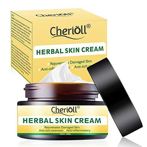 Akne Creme, Ekzeme Cream,Körpercreme, Natürliche chinesische Kräutercreme,Juckreiz, unangenehme...