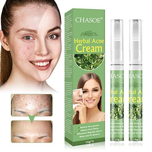 Acne Treatment, Akne Creme, Anti Pickel Creme, Gegen Pickel und unreine Haut für ein klareres...